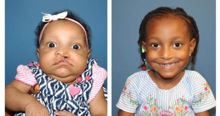 Florida Craniofacial Institute Cleft Lip Repair